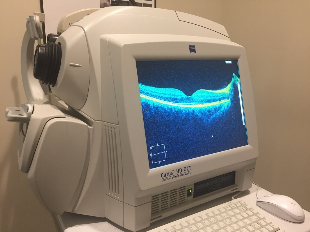 OCT - Optical Coherence Tomography